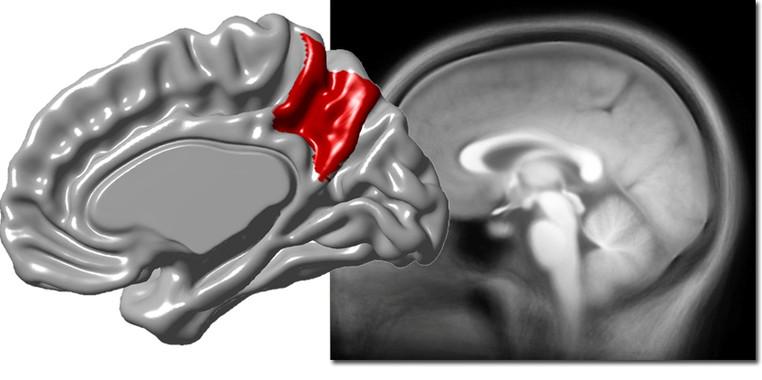 La-variabilidad-del-precuneo-del-cerebro-esta-asociada-a-la-corteza-cerebral_image_380