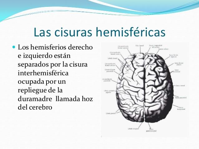 las-cisuras-hemisfricas-1-638